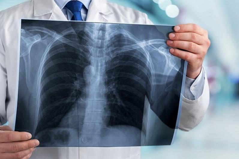 Пневмония с признаками коронавируса: 10 заболевших, три летальных исхода за сутки