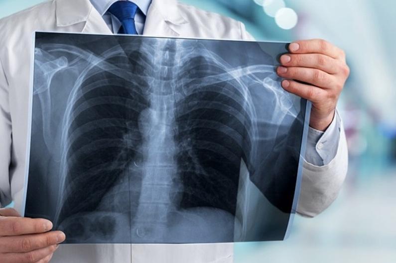 13 казахстанцев заболели пневмонией, пятеро скончались