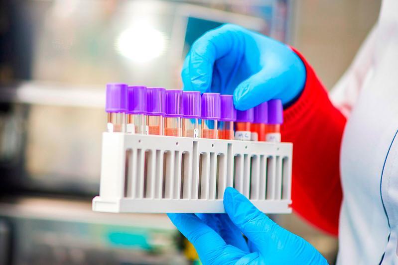 Батыс Қазақстанда соңғы төрт тәулікте 440 адамнан коронавирус табылды