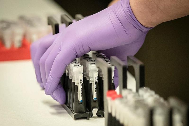 Число скончавшихся от коронавируса в Украине превысило 50 тысяч