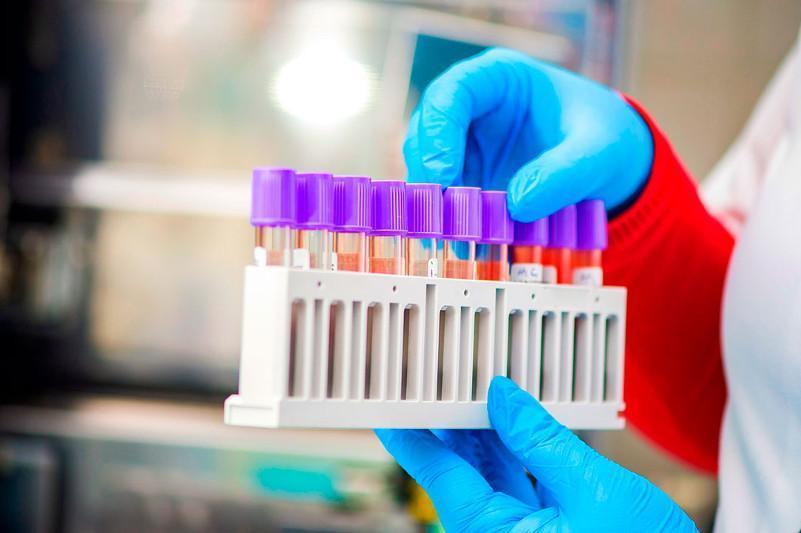Алматы облысында31 адамнан коронавирус анықталды