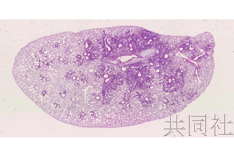 日本研究团队探明人造微粒引发肺部炎症机制