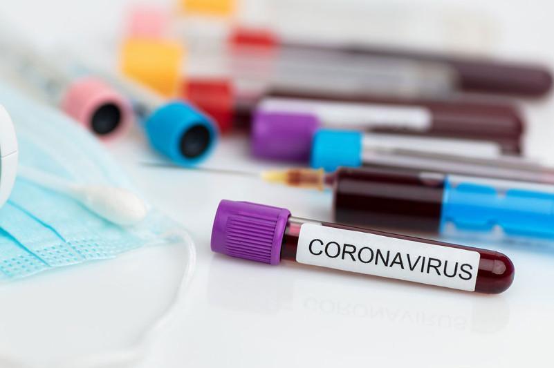 Коронавирус: Қозоғистонда касалланиш ҳолатлари жами сони 410 мингдан ошди