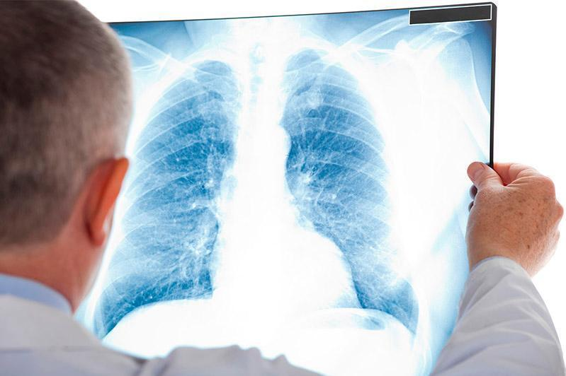 83 COVID-like pneumonia cases registered in Kazakhstan