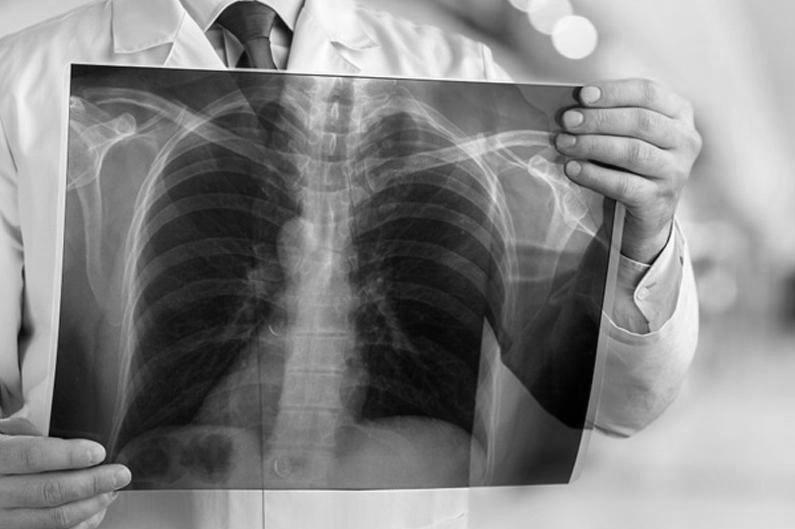Пневмония: Қозоғистонда бир кунда 34 киши касал бўлиб, 70 бемор соғайиб чиқди