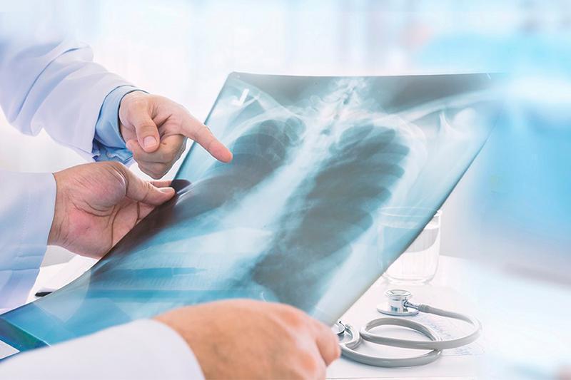 COVID-like pneumonia: 223 new cases in Kazakhstan