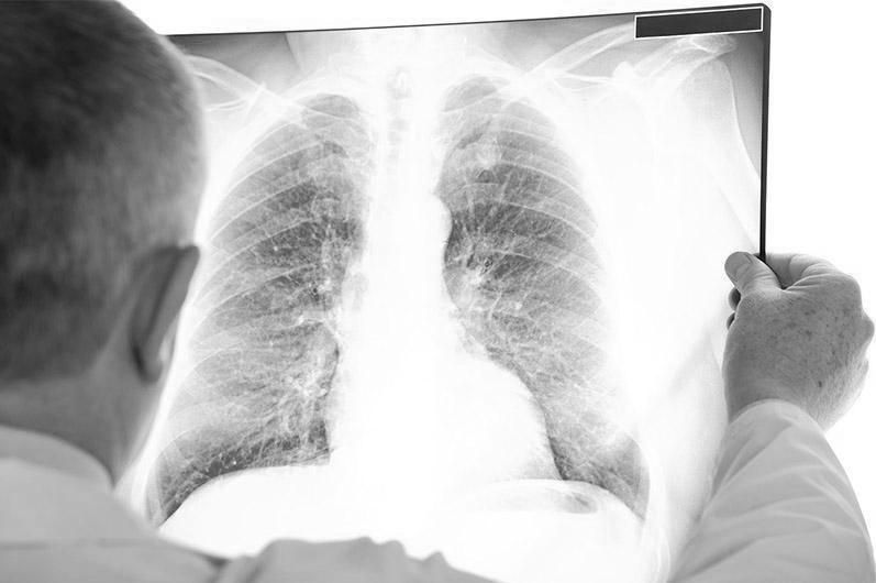 Коронавирус пневмониясынан 21 адам қайтыс болды