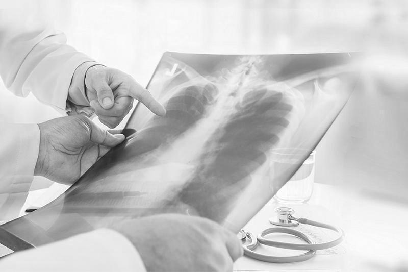 Kazakhstan's total pneumonia deaths up by 25