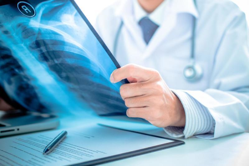 COVID-19-like pneumonia affects 379 in Kazakhstan in 24 hrs
