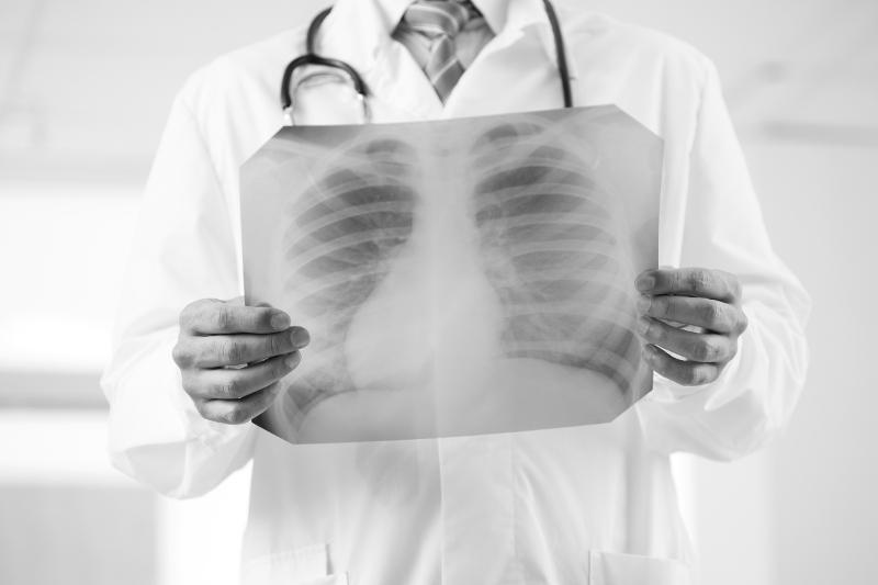 Девять казахстанцев умерли от пневмонии с признаками КВИ