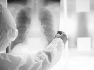 COVID-19-like pneumonia affects 62 more, killing 1 in Kazakhstan